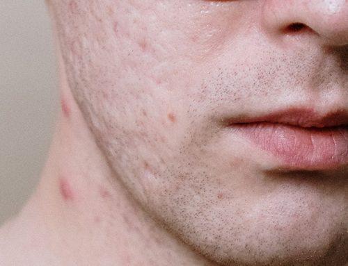Skin in Pandemic